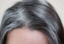 remedies for grey hair