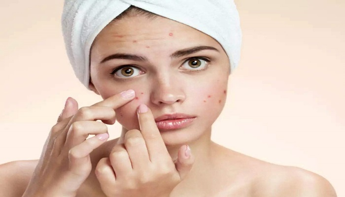 rid of pimples