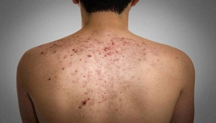 back acne treatment