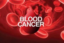 blood cancer