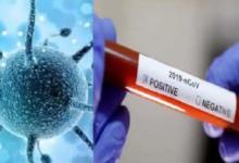 औरैया जिले में कोरोना के 19 संक्रमित मरीज