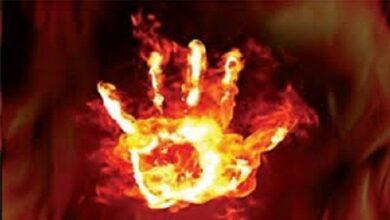 servant burnt